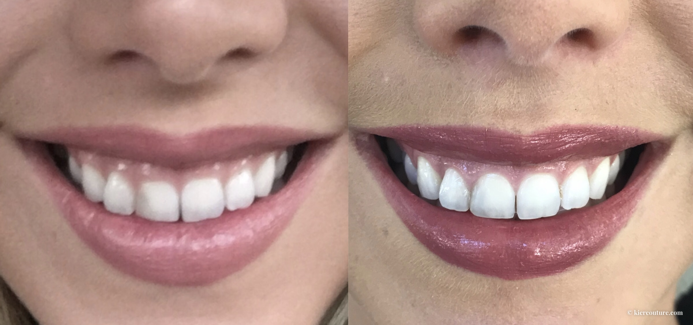 Laser Crown Lengthening