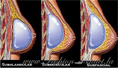 subfacial implants